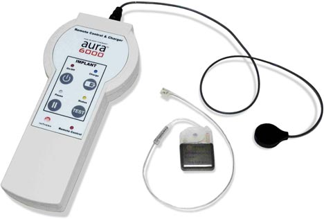 ImThera Aura 6000 implantable device for the treatment of obstructive sleep apnea