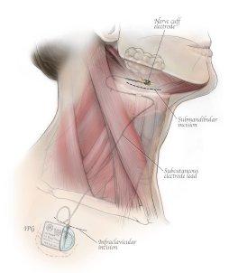 Imthera implant