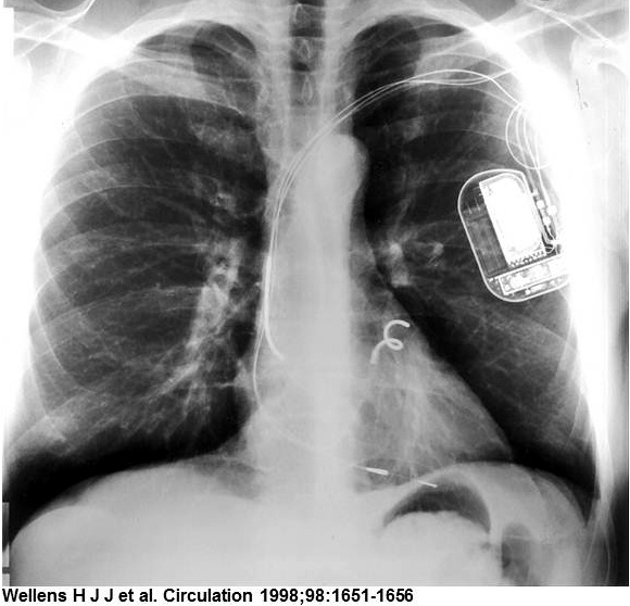 X-Ray of Patient implanted with InControl's Metrix Implantable Atrioverter