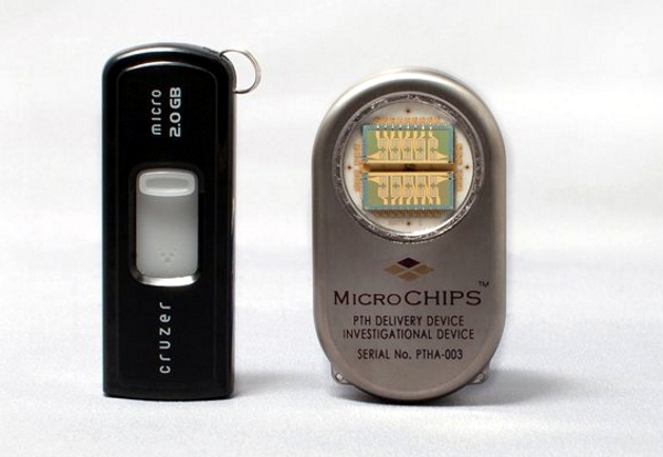 MicroCHIPS implantable programmable pump for the treatment of osteoporosis