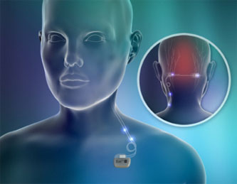 Eon Mini Implantable stimulator used for migraine prevention www.implantable-device.com David Prutchi Ph.D.
