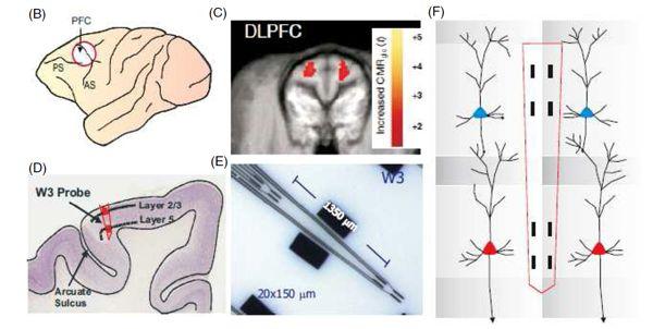 Cognitive Prosthesis www.implantable-device.com David Prutchi Ph.D.