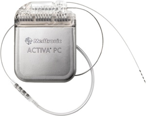 Medtronic Activa PC used by Functional Neurostimulation for treating Alzheimer's