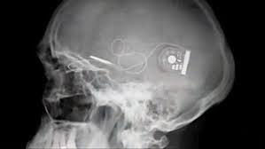 Retina Implant AG www.implantable-device.com David Prutchi PhD