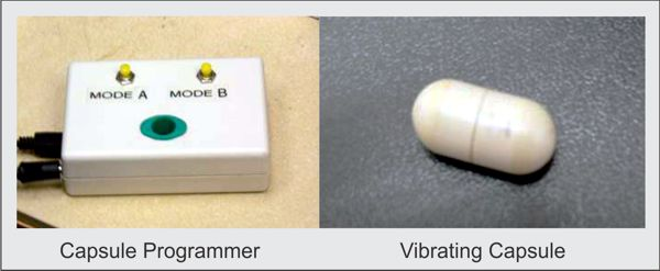 Vibrant Capsule for tretment of constipation www.implantable-device.com