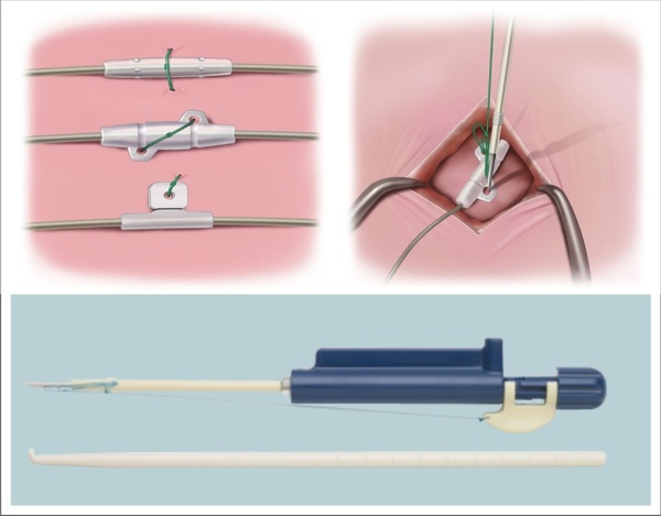 Fixate Tissue Band for Spinal Cord Stimulator Leads and Pain Pump Catheters David Prutchi PhD www.implantable-device.com