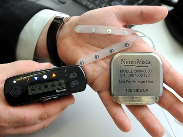 NeuroVista implantable device for seizure detection www.implantable-device.com David Prutchi PhD