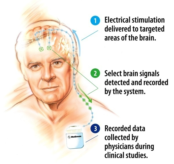 Activa PC+S deep brain stimulator with sensing and recording of brain activity David Prutchi PhD www.implantable-device.com