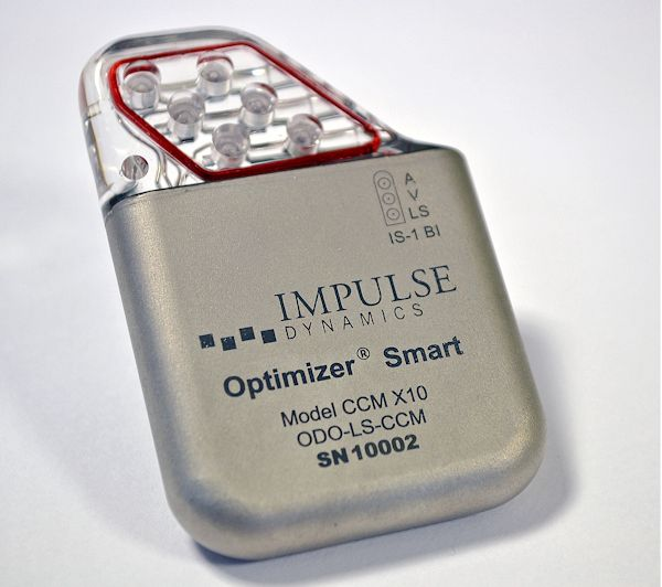 OPTIMIZER Smart IPG David Prutchi PhD