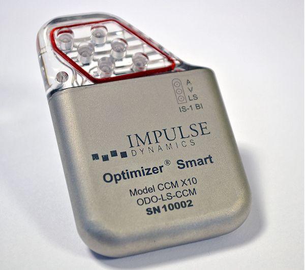 OPTIMIZER Smart IPG David Prutchi PhD