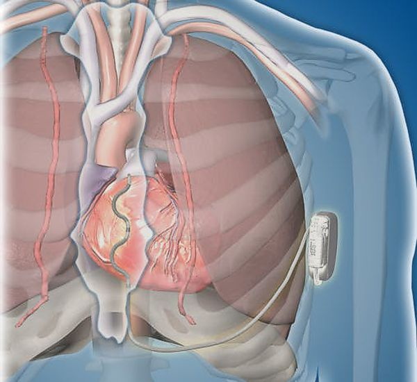 Medtronic EV ICD